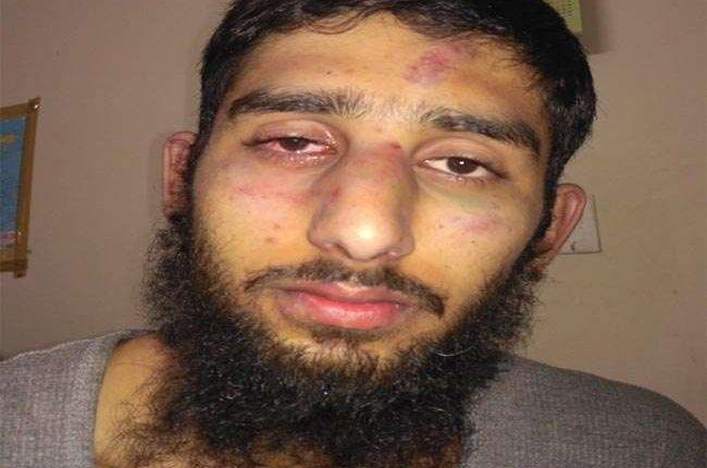जम्मू-कश्मीर के दो छात्रों पर हमला, कौन है यह लोग जो माहौल बिगाड़ने में लगे हैं ?